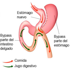 Mini-bypass gastrico